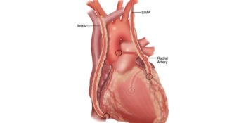 Cosa è Il By-Pass Aortocoronarico